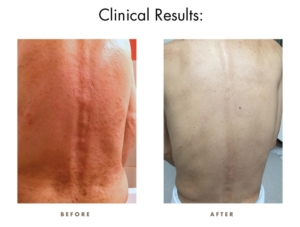CamWell Clinical Results