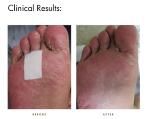 CamWell Clinical Results - Foot